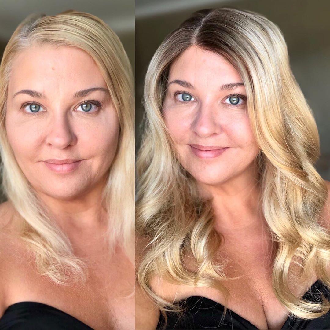 Andrea's Hair Loss Journey