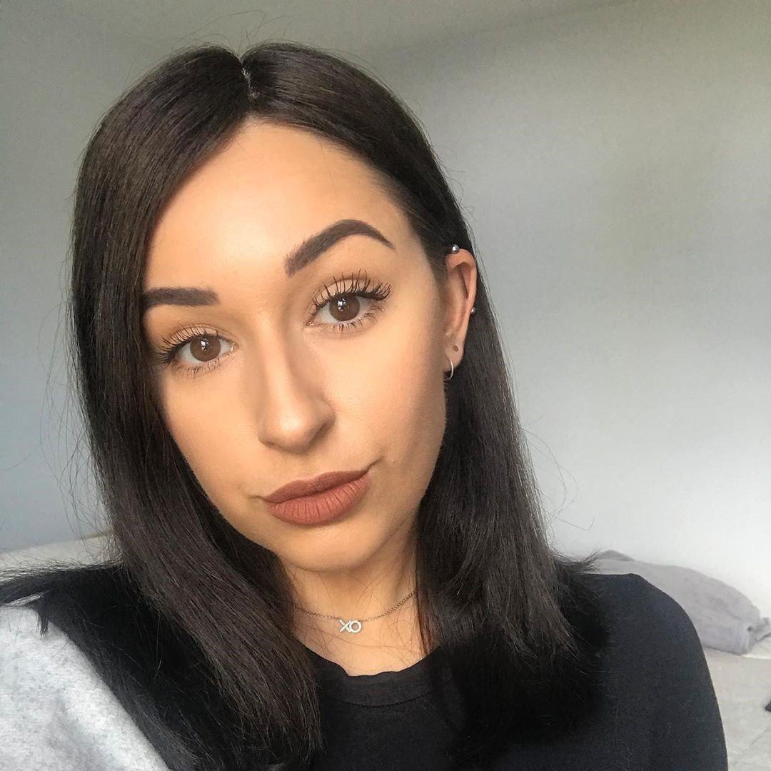 My Androgenic alopecia Story 2