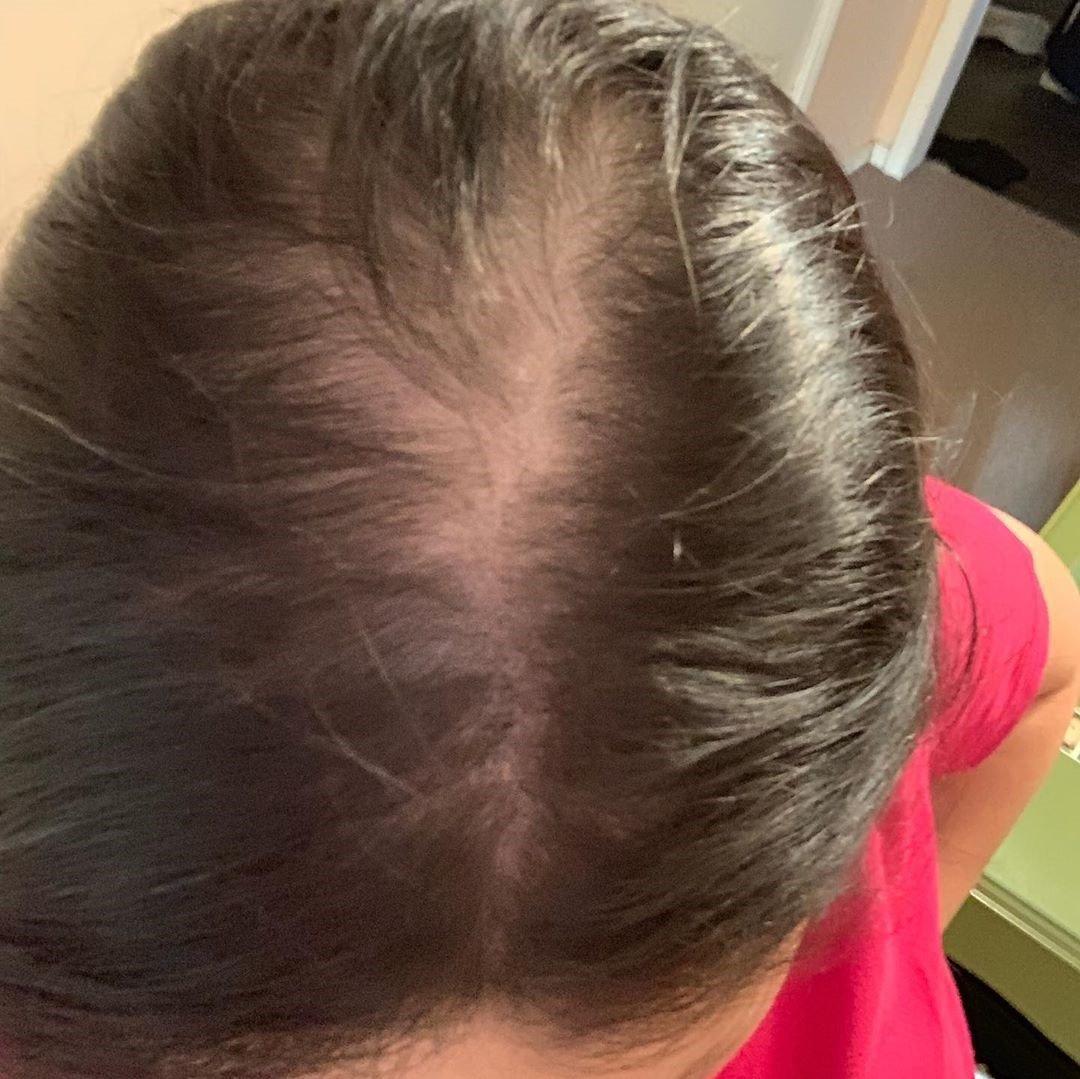Share My Hair Loss Experience 1