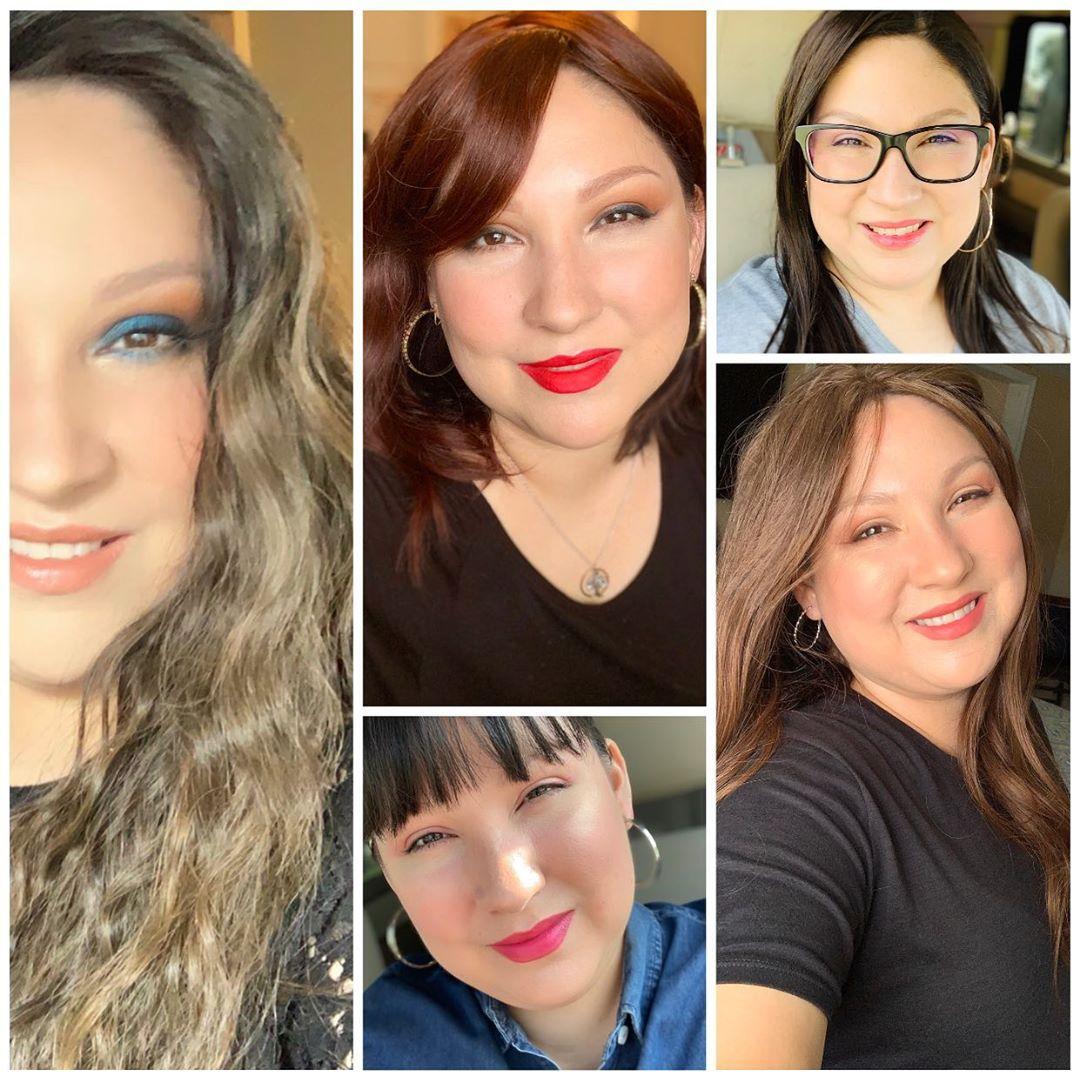 Share My Hair Loss Experience 5