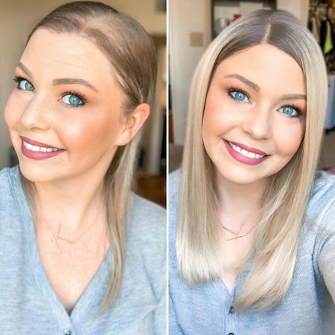 hair loss story 1