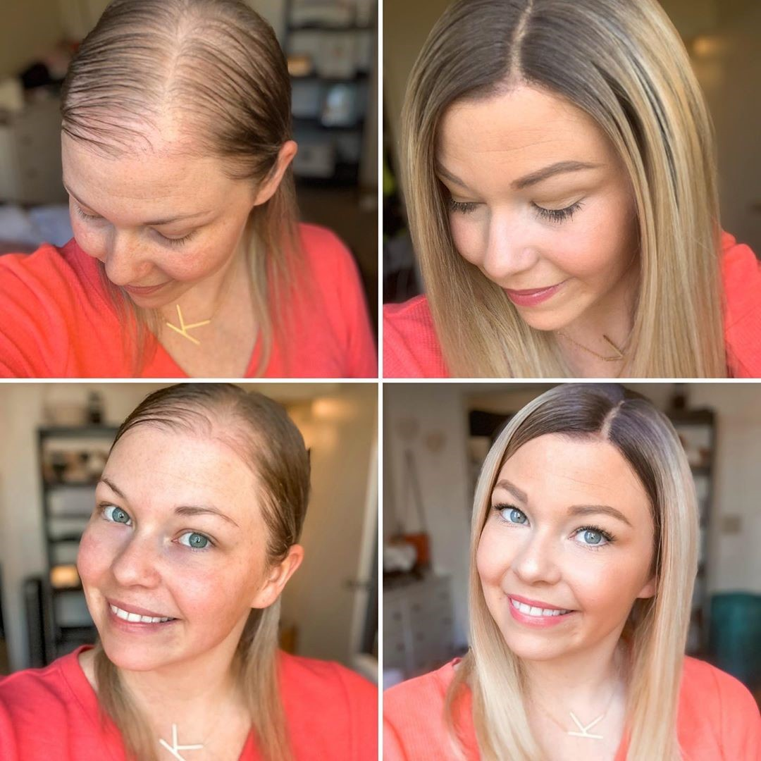 hair loss story 2
