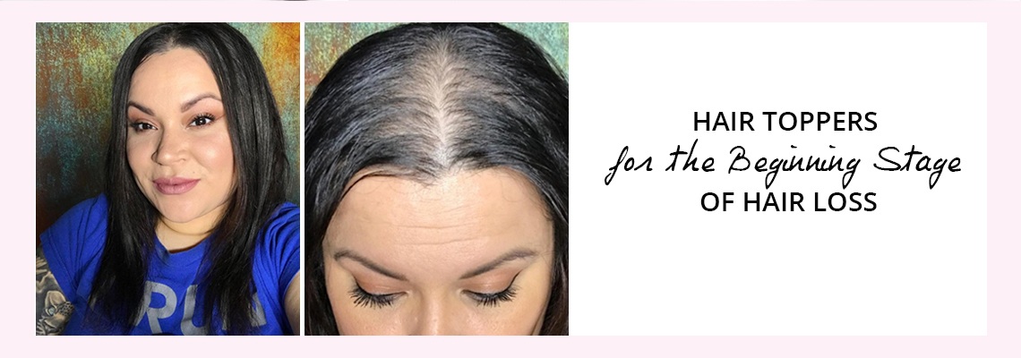 hair toppers for beginning stage hair loss
